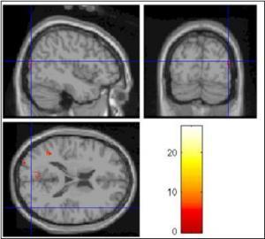La resonancia magnetica permite detectar cuando el cerebro miente